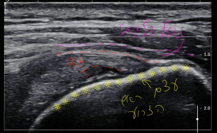בדיקת אולטרהסאונד המדגימה גיד סופרהספינטוס שהוא קרוע בחלקו המרוחק (מימין), הקו הלבן החזק מבטא את חיבורו אל עצם ראש הזרוע בגבשושית הגדולה