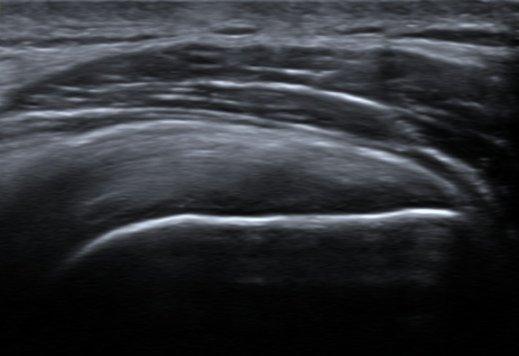 בדיקת אולטרהסאונד המדגימה גיד סופרהספינטוס שהוא תקין, הקו הלבן החזק מבטא את חיבורו אל עצם ראש הזרוע בגבשושית הגדולה