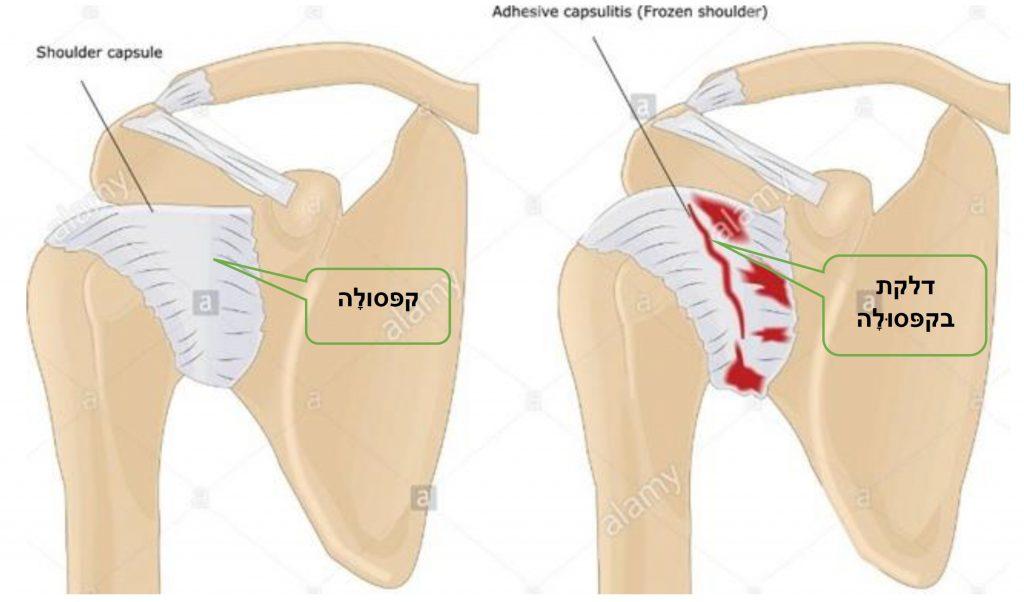 דלקת הקפסולה בכתף הקפואה. שלושת שלבי המחלה: 1. דלקת חריפה 2. דלקת והצטלקות הקפסולה - קיפאון 3. שלב החלמה איטית