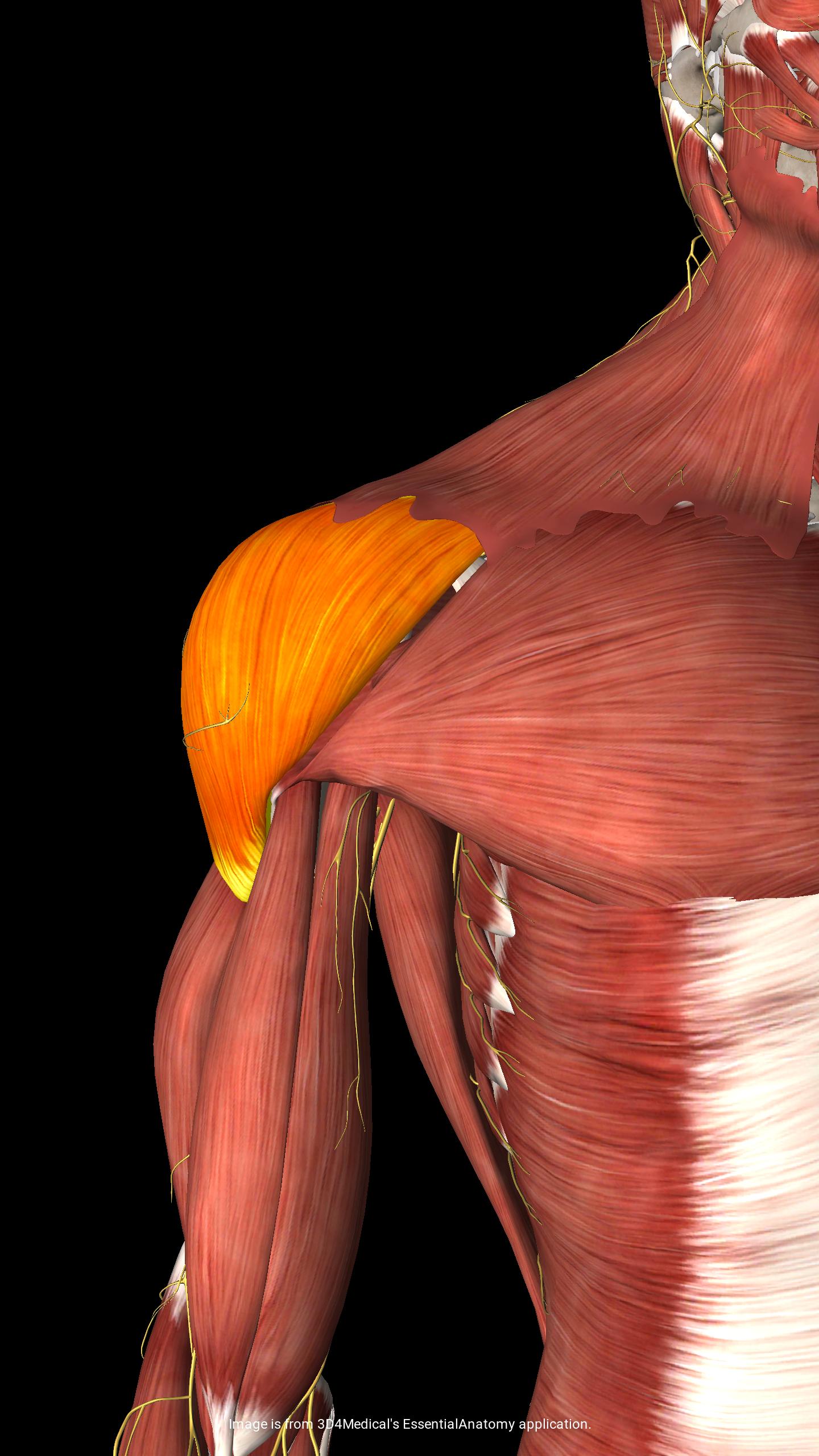 שריר הדלתואיד בכתף כמקור לכאב מיופציאלי